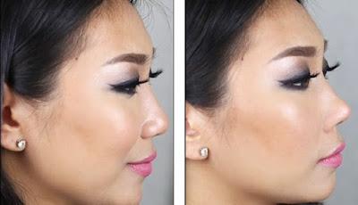 Trik Mudah dan Murah Memancungkan Hidung dalam 30 Detik