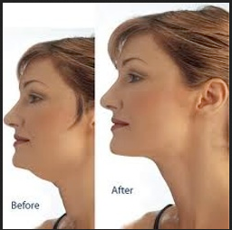 The Perfect Body Weight Loss 5 Usful Tips On How Lose Neck Fat