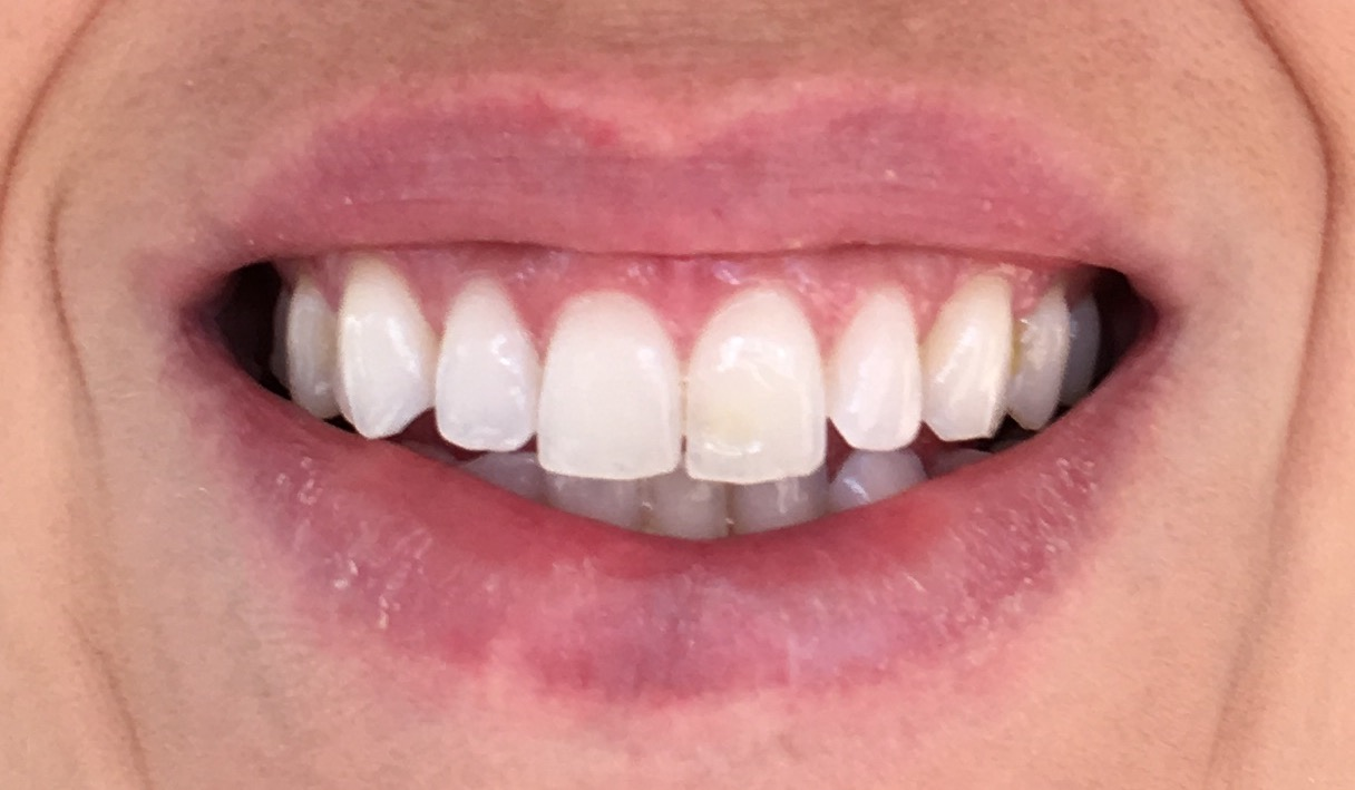 Smile Brilliant Teeth Whitening Impressions Day 10