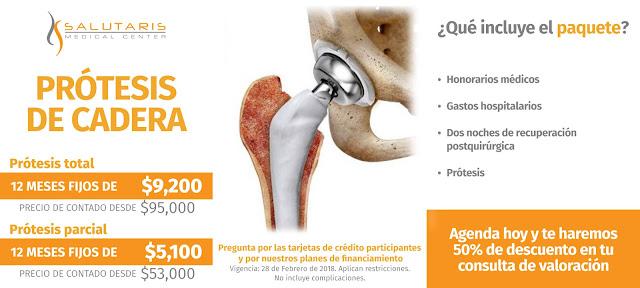 Paquete Protesis Cadera Precio Guadalajara Mexico
