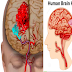 Brain Aneurysm: 8 Causes That Can Highly Upsurge Aneurysm