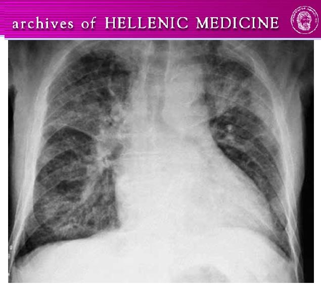 https://www.researchgate.net/publication/314174485_Pneumonology_Quiz_-_Case_5