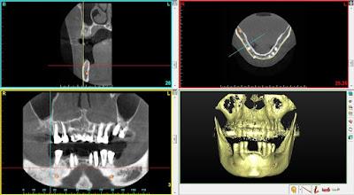 Uso de células madres y 3D para tratamientos odontológicos