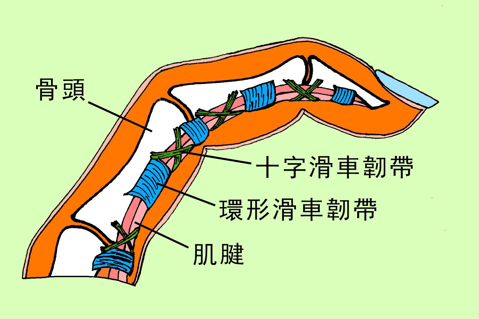 好痛痛 - 運動傷害 (8) 攀巖常見的手指痛手指滑車韌帶撕裂傷 (by ATX 姚斯元物理治療師)