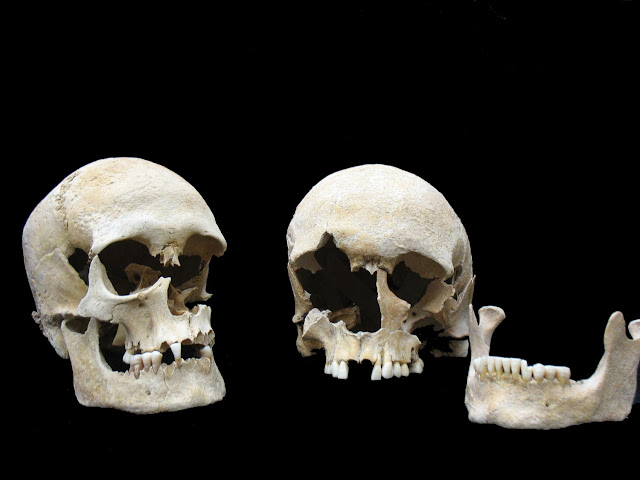 Reconstructing the sixth century plague from a victim