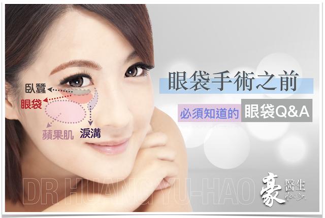 高雄眼袋手術權威黃昱豪醫師為您解答