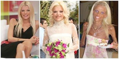 Perubahan Miris Nana Karagianni, Jurnalis Cantik Yang Terkena Anoreksia