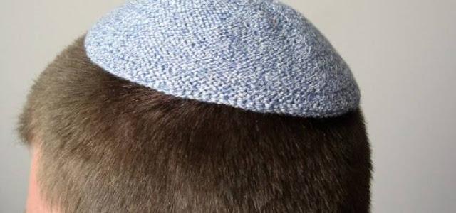 هل تعلم لماذا يرتدى اليهود قبعة صغيرة على رؤوسهم! معلومة قد تسمع عنها لأول مرة..
