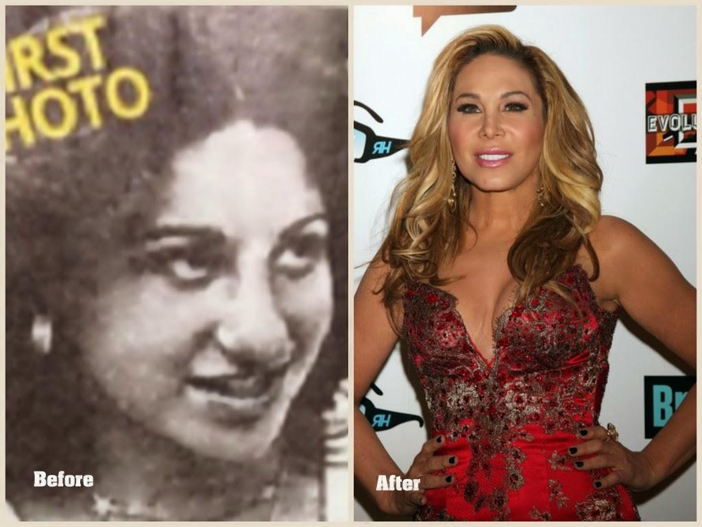 Alyssa Milano Breast Implants celebrity plastic surgery photos
