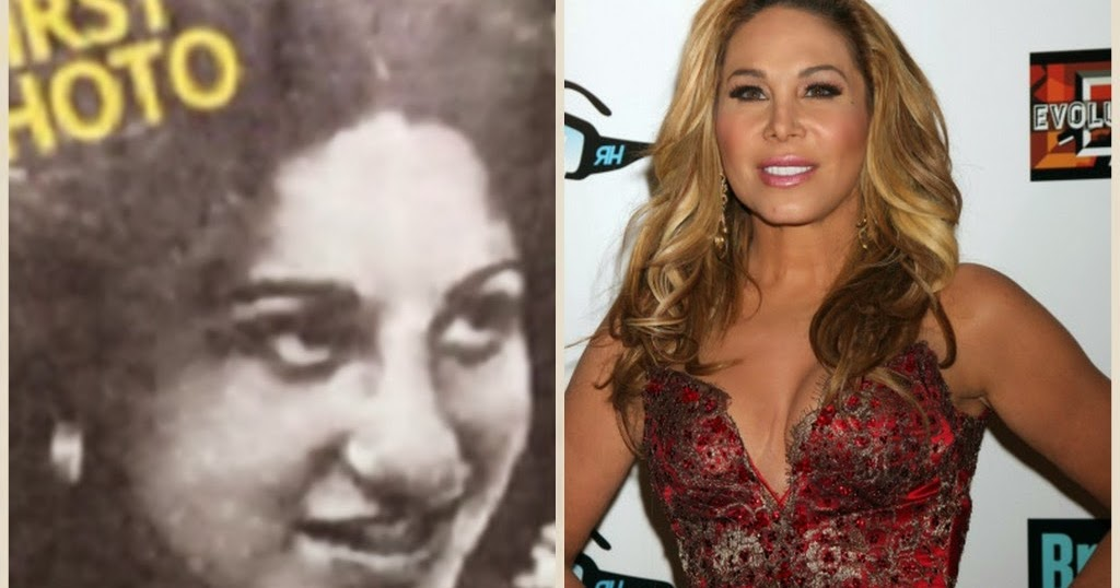 Did Adrienne Maloof Have Plastic Surgery Nose Job Botox