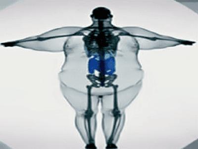 Gambar Anatomi Fisiologi Dan Cairan Tubuh Manusia