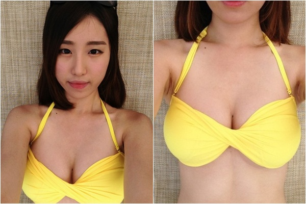 짱이뻐! - Korea Breast Surgery Before And After Real Story