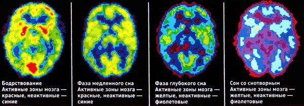 мозг во время разных фаз сна