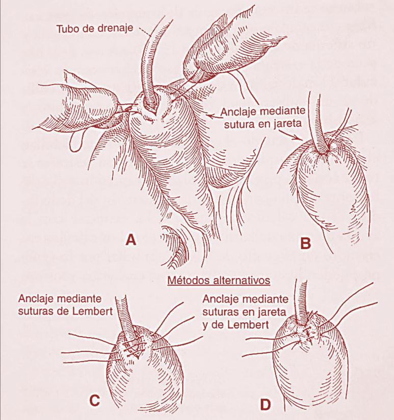 DR. JUAN HERNÁNDEZ ORDUÑA. : Colecistectomía abierta