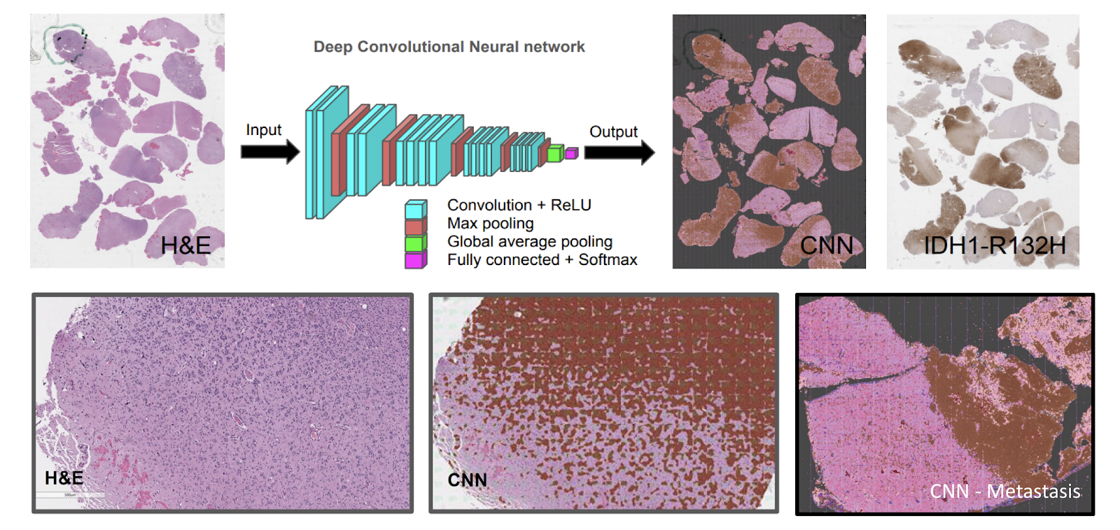 neuropathology blog: Guest Post - Wanted: Your Opinion on