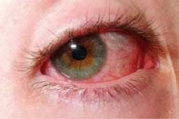 3 Cara Mudah Mencegah Mata Lelah