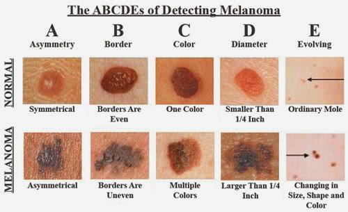 este important sa depistezi cancerul de piele cat mai din timp