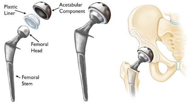 Is knee or hip replacement surgery really life changing?