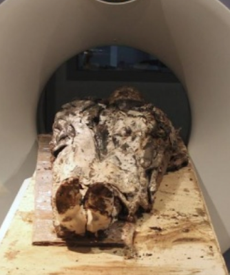 Fully Dressed 350 Year Old Body found in France