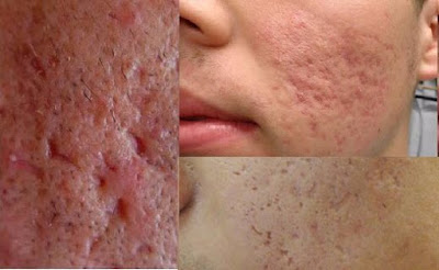10 Tips Guaranteed to Remove Acne Scars Naturally
