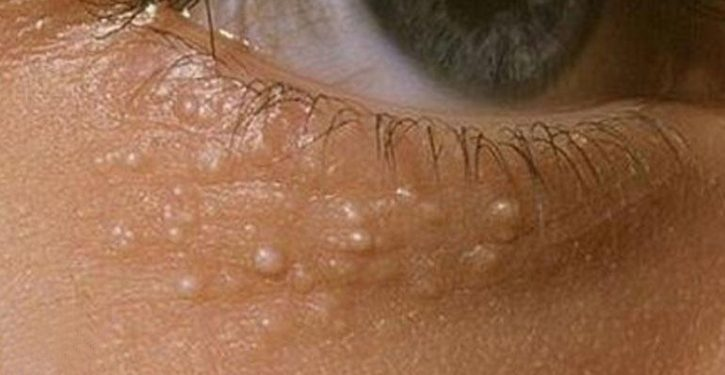 Here's How To Remove These Little White Balls Under Your Eyes