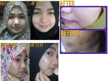 Sempurnakan Kejelitaan Anda Dengan Madeena Skincare by Helenz Signature