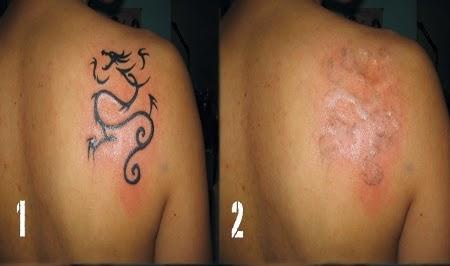 Como eliminar un tatuaje para siempre sin cirug a laser - Como eliminar los ratones para siempre ...