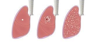 Obat Tbc Dan Paru Paru