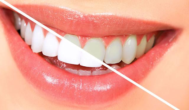 شاهد هذه الحيلة الطبيعية الرائعة للتخلص من اصفرار الأسنان نهائياً