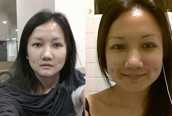 짱이뻐! - Wonderful Korean Eye Plastic Surgery Golden Ratio