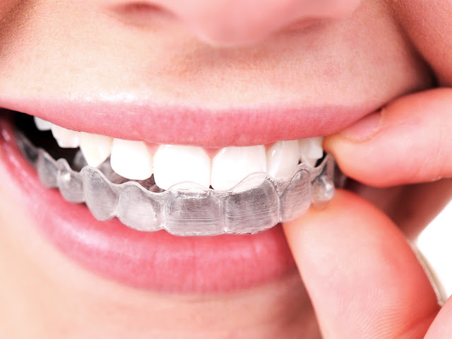 Invisalign Reviews, Invisalign Customers Reviews