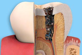 Dents Sensibles Symptômes