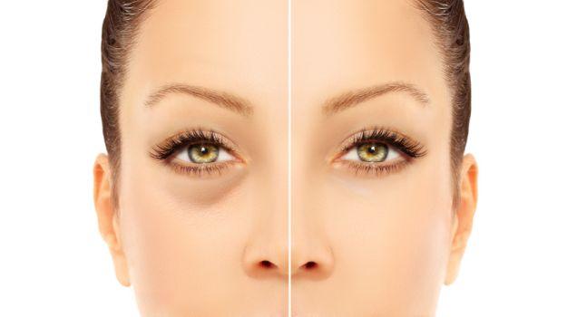 remedios caseros para las ojeras y arrugas