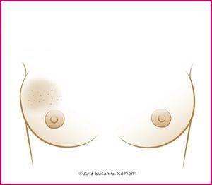 tanda barah payudara
