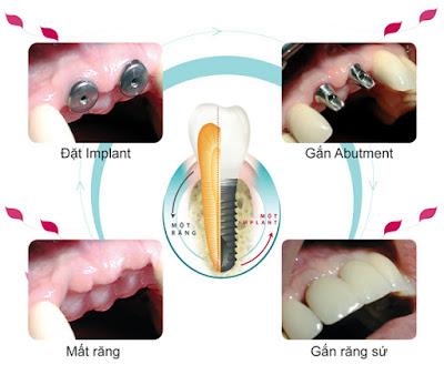 Cấy ghép Implant được thực hiện như thế nào?
