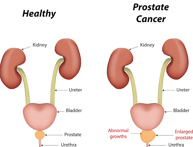 How to Recognize Advanced Prostate Cancer Symptoms