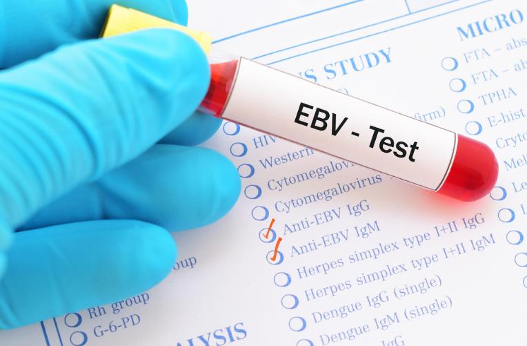 Hati-Hati, Virus EBV Bisa Sebabkan 7 Penyakit Serius Ini!