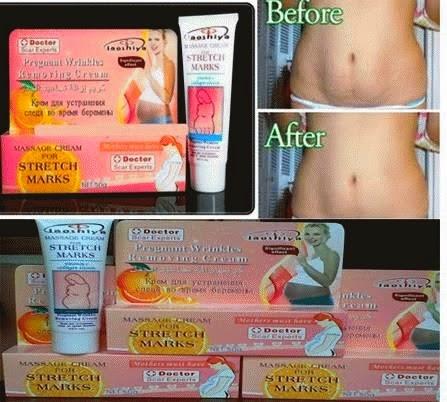 Dr Scarr Laoshiya Stretchmark Cream