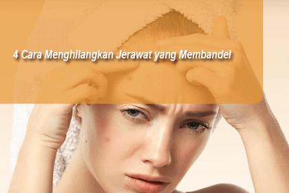 4 Tips Cara Menghilangkan Jerawat Yang Membandel pada Wajah atau Punggung