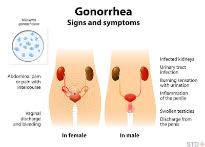 Mouth Action Spreads Untreatable Antibiotics-Resistant Gonorrhoea – WHO Warns, Signs and Symptoms of Gonorrhoea