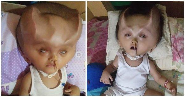 Μωρό έβγαλε «διαβολικά κέρατα» στο κεφάλι λόγω σπάνιας ασθένειας που του παραμόρφωσε το κρανίο! (βίντεο)
