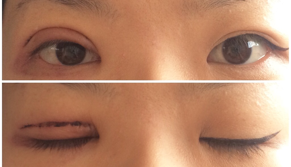 重 二 片目 だけ 片目だけ二重になる原因は?直す方法(治す方法)は?【アイプチや整形もあり?】|モッカイ!
