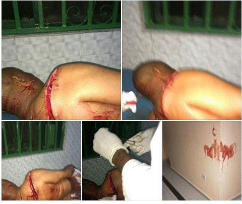 Assassins Attack Paramount Ruler In His Home In Bayelsa (Graphic Photos)