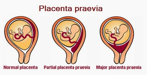 placenta previa plasenta previa