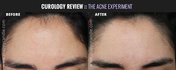 Curology Forehead Before & After (4 Months) - The Acne Experiment