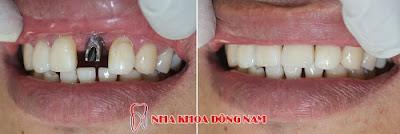 có nên cắm ghép răng implant không -8