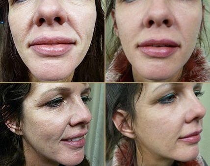How To Use Facial Yoga Get Rid Of Smile Lines And Mouth Wrinkles