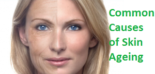 Common Causes of Skin Ageing
