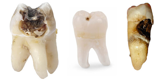 tooth decay in molar and premolar teeth
