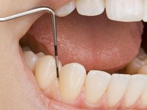 Cara Menghilangkan Karang Gigi Sendiri Secara Alami